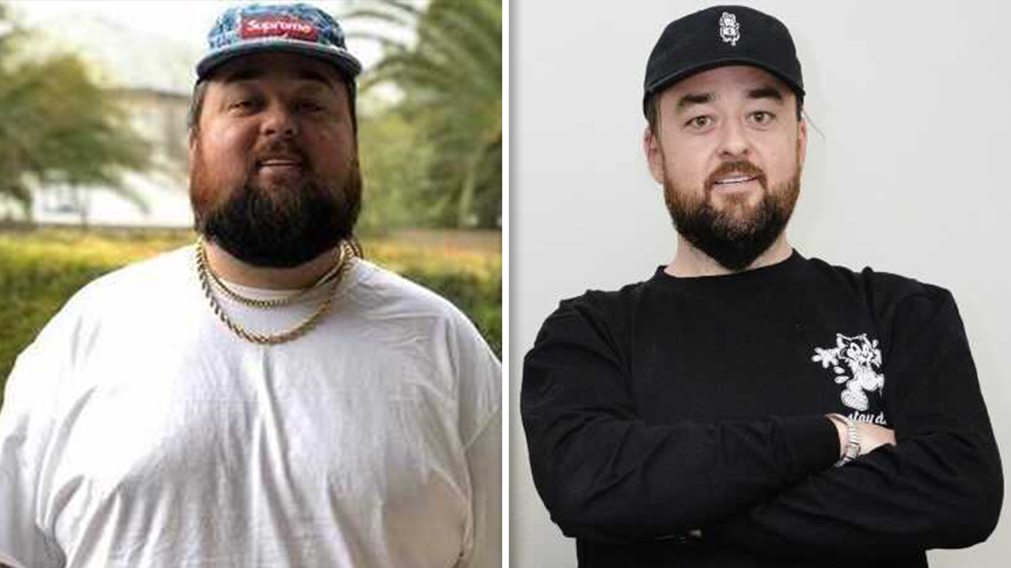 Chumlee from 'Pawn Stars' Has Lost 160 Pounds After Gastric Sleeve Surgery