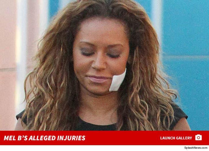 Mel B's Injuries