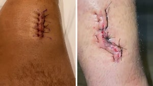 UFC's Chris Weidman Shows Wound 'Where My Bone Ripped Through the Skin!'