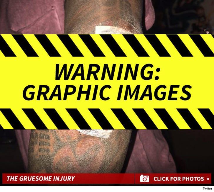 Lil Wayne's Gruesome Skateboard Injury