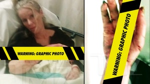 'Beverly Hills Cop' Actress Heather Parkhurst Mauled by Her Pit Bulls