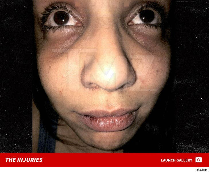 Laura Leal's Injuries