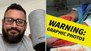 UK Bodybuilder Nearly Loses Legs In Gnarly Staircase Fall, My Alexa Saved Me!