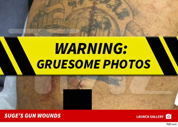 Suge Knight's Bullet Wounds
