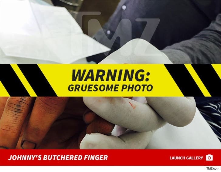 Johnny Depp's Gruesome Finger