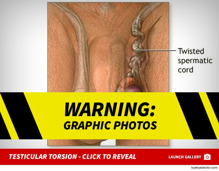 Testicular Torsion Click To Reveal