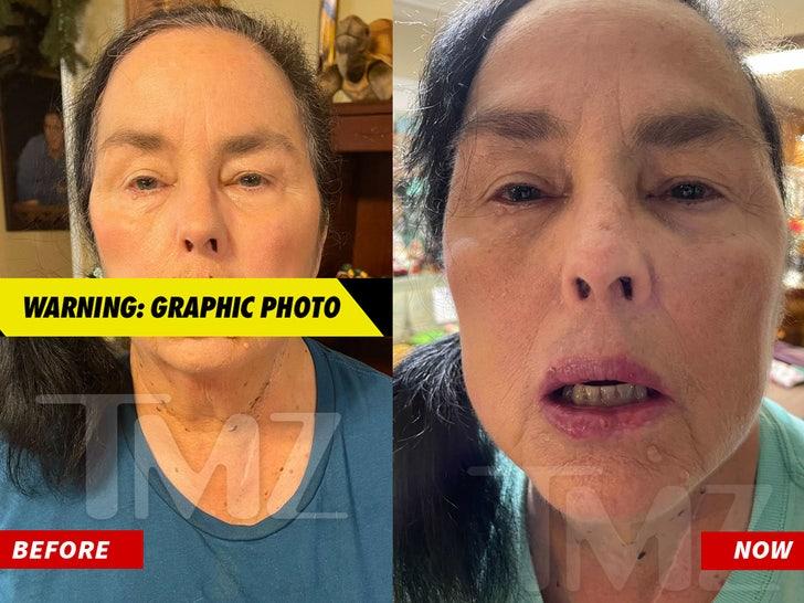 Kay Robertson's Injury Recovery