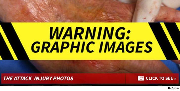 Kim Richards Dog Attack Injury Photos