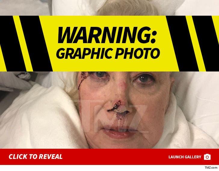 Sally Kirkland Injury Photos