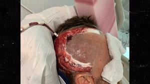 Baseball Pitcher Tyler Zombro Reveals Brain Surgery Scar After Line Drive Shot to Head