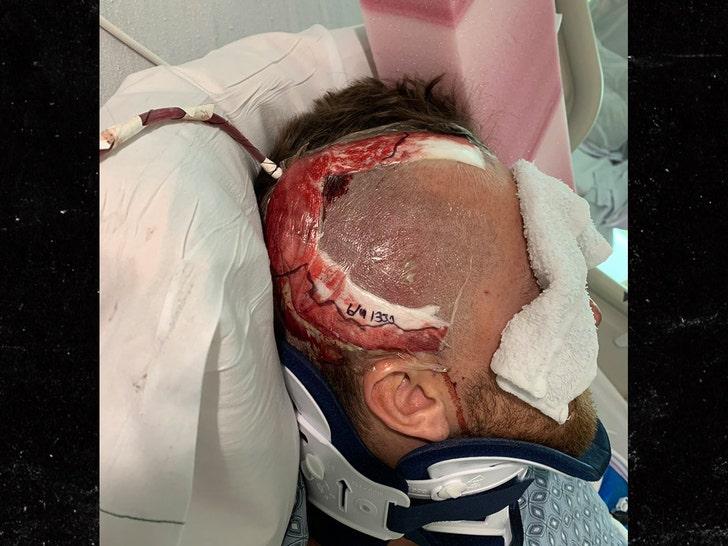 Baseball Pitcher Tyler Zombro Reveals Brain Surgery Scar After Line Drive Shot to Head.jpg