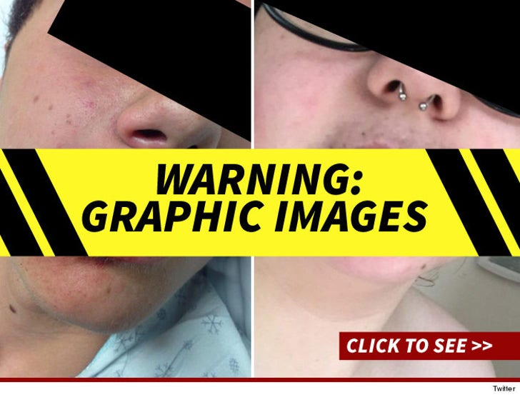 Kylie Jenner Lip Challenge -- The Gruesome Injuries