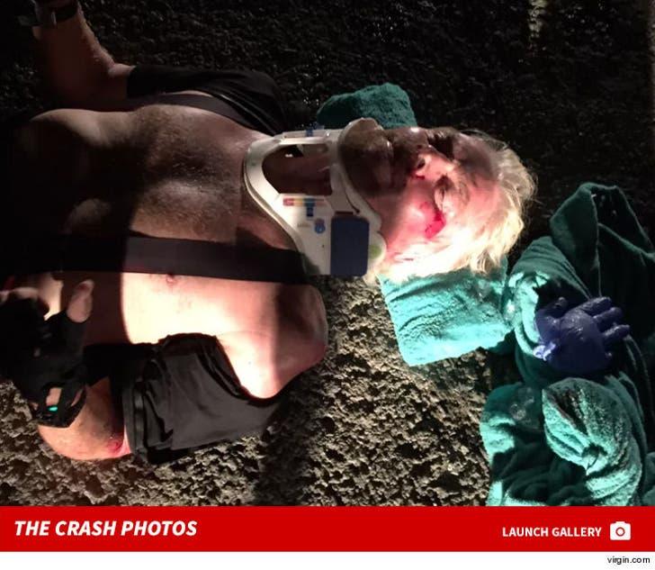 Richard Branson's Bike Crash Injuries