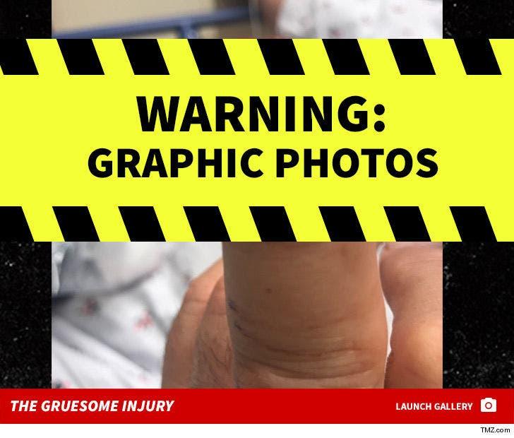 Tony Orlando's Gruesome Finger Injury