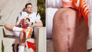 Joe Burrow's Huge, Gnarly ACL Surgery Scar Shown During Bengals' Jersey Reveal