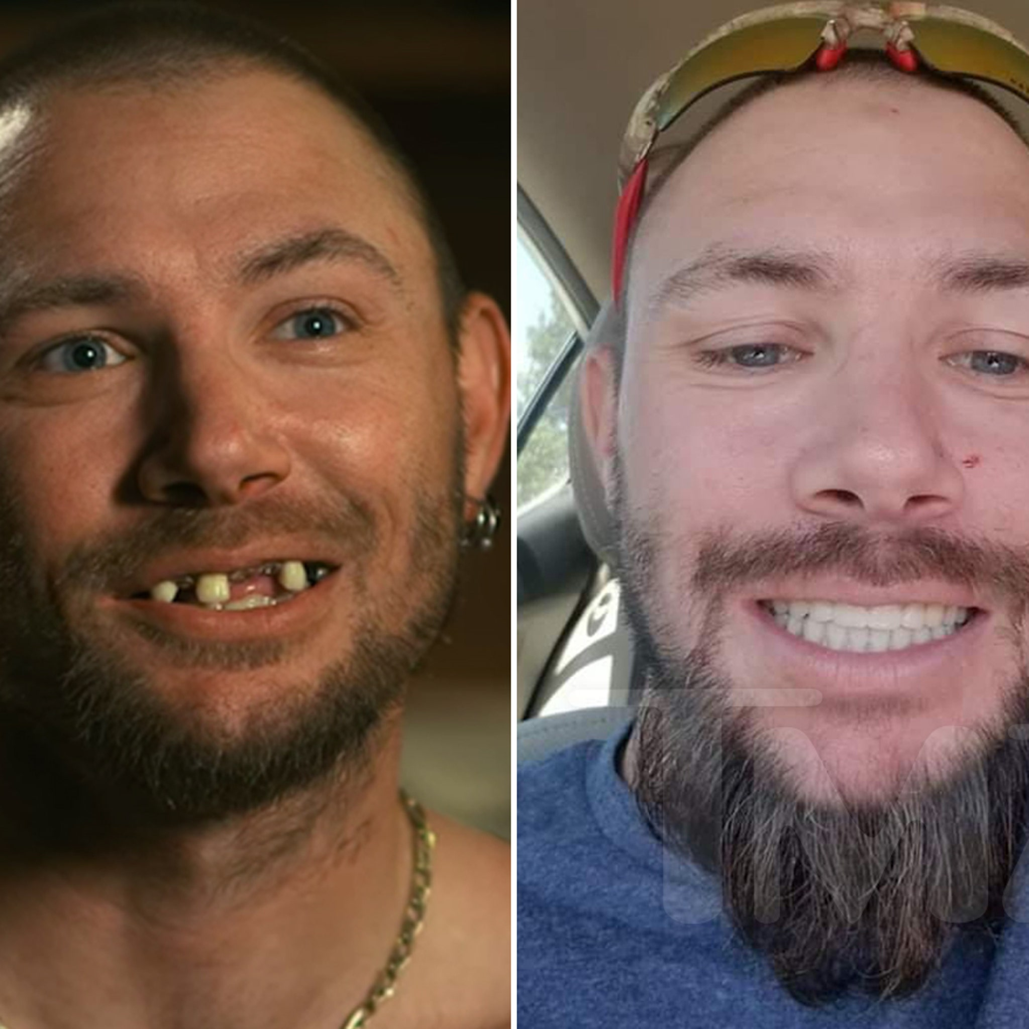 Tiger King Star John Finlay Got New Teeth Has Some Issues With