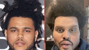 The Weeknd -- Good Genes or Good Docs?!