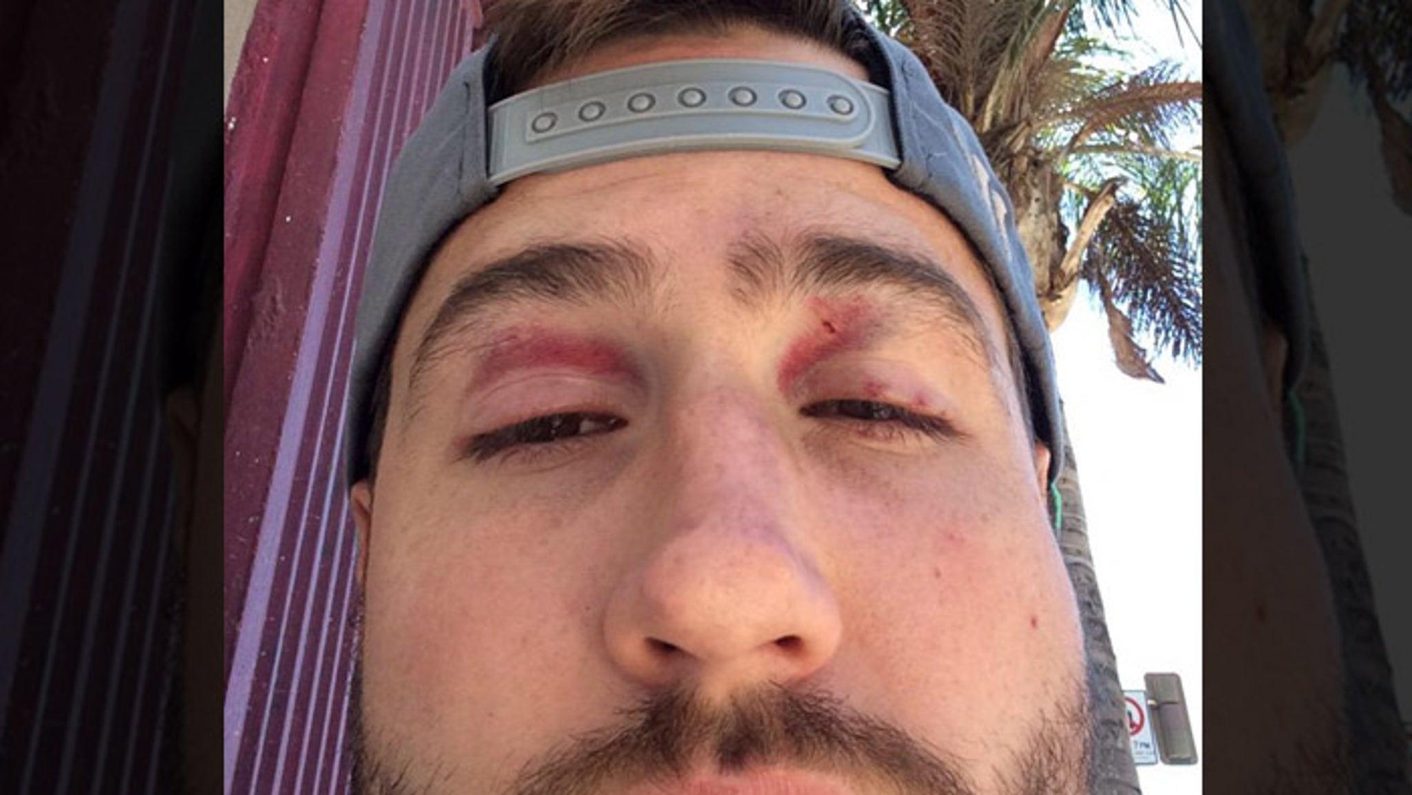 The Bachelorette Contestant - Hospitalized After Brutal