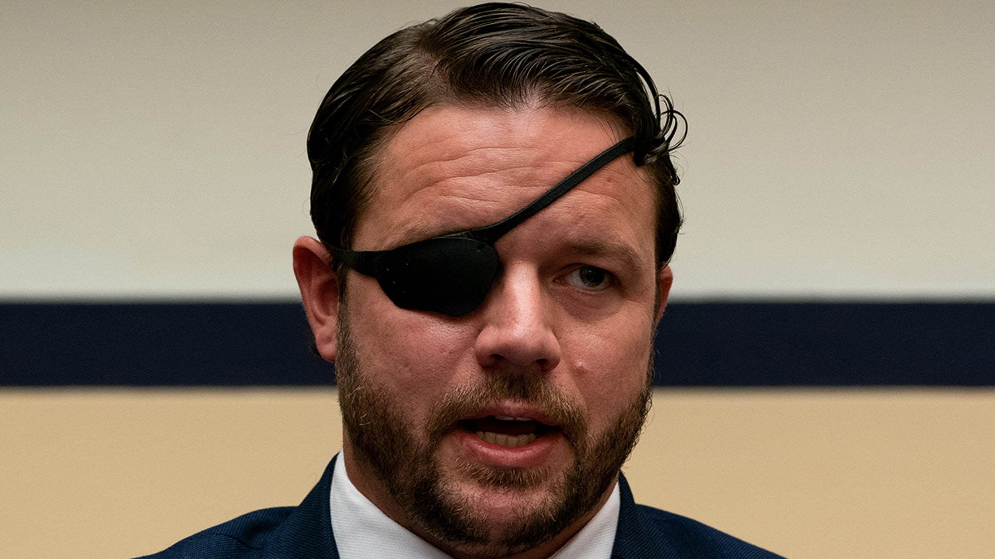 Rep. Dan Crenshaw Says He's Blind for a Month Due to Emergency Surgery thumbnail