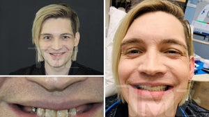 The Calling Singer Alex Band Gets New Teeth and It's Gnarly