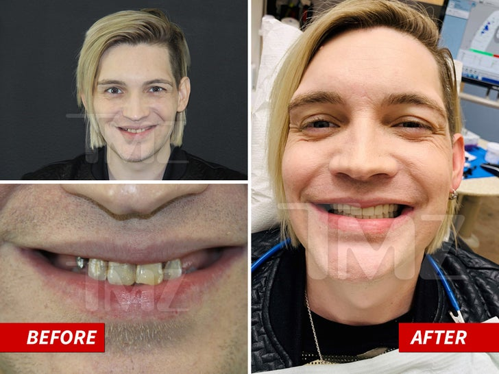 Alex Band -- The Mouth Makeover