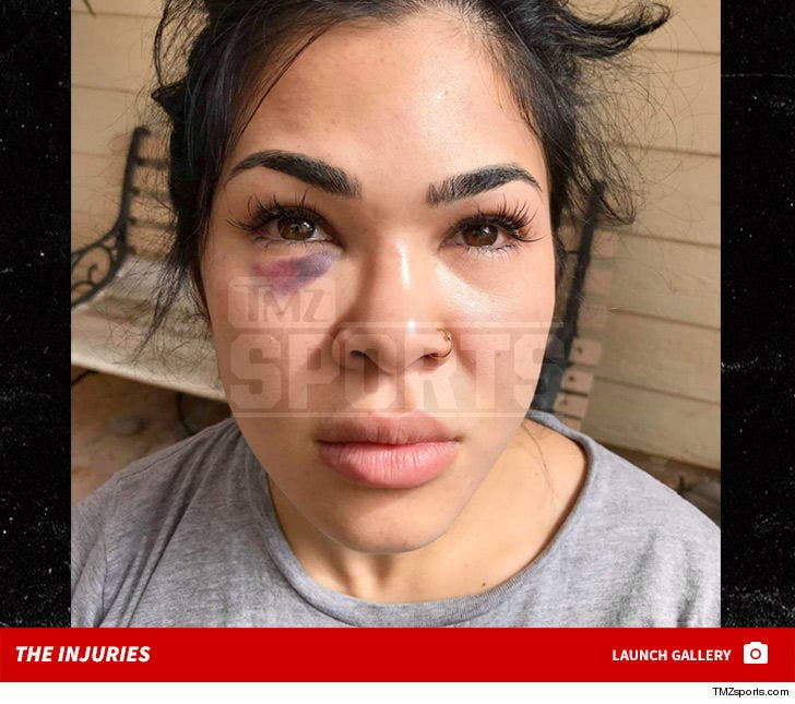 Rachael Ostovich's Domestic Violence Injuries