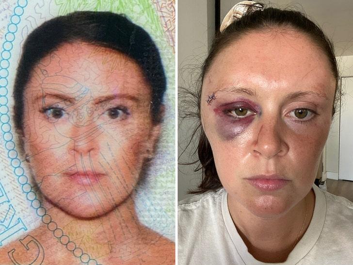 היוטובר האמרקאי רוסי ויטלי זדורבסקי נעצא במיאמי לאחר שצרך סם מפטרית הזיות ותקף אישה באמצע הרחוב 3fd1412585e04e62babc801dbe94672c_md