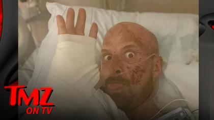 'AGT: Extreme' Contestant Jonathan Goodwin Breaks Silence On Horrific Accident | TMZ TV.jpg