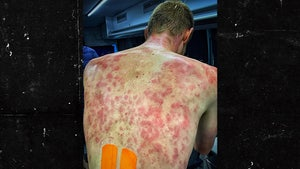 Pro Cyclist Tim Declercq Reveals Gnarly Back Welts After Riding Through Hail Storm