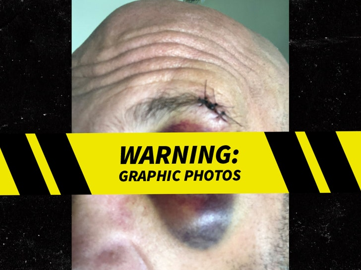Chris Daniels Eye Injury