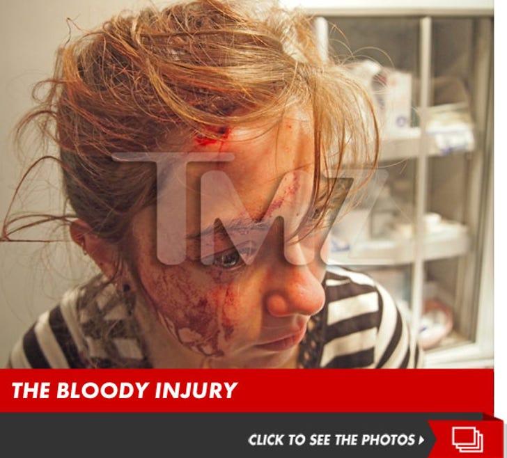 Chris Brown Fight -- Flying Bottle Cracks Girl's Head Open