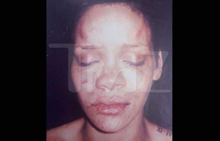 Rihanna Beat Up -- Brutal Abuse Photos