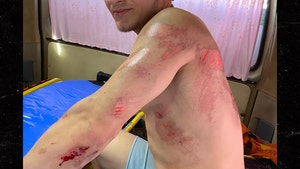 UFC's Movsar Evloev In Bloody Motorcycle Crash, Out of UFC 248