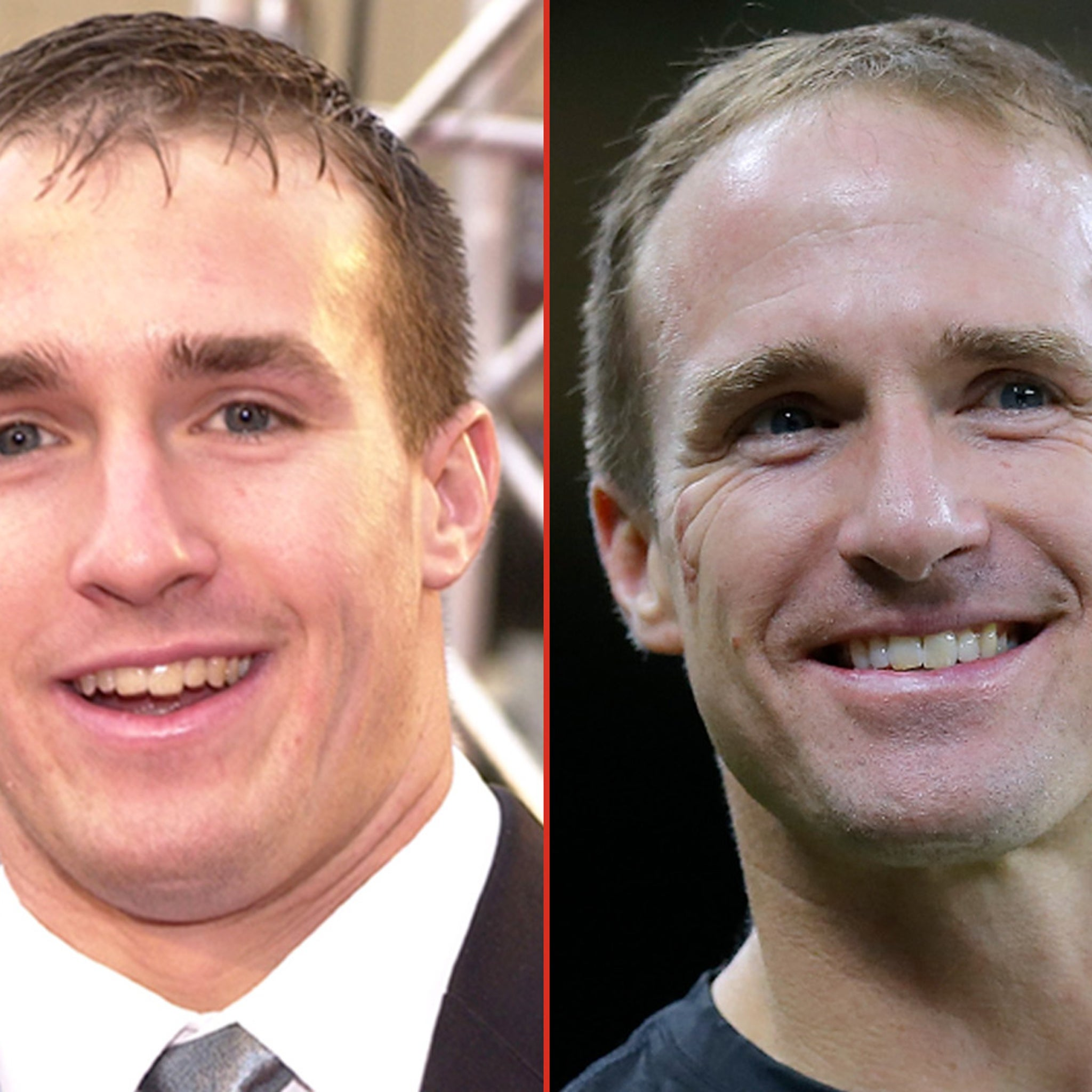 Drew Brees -- Good Genes or Good Docs?!