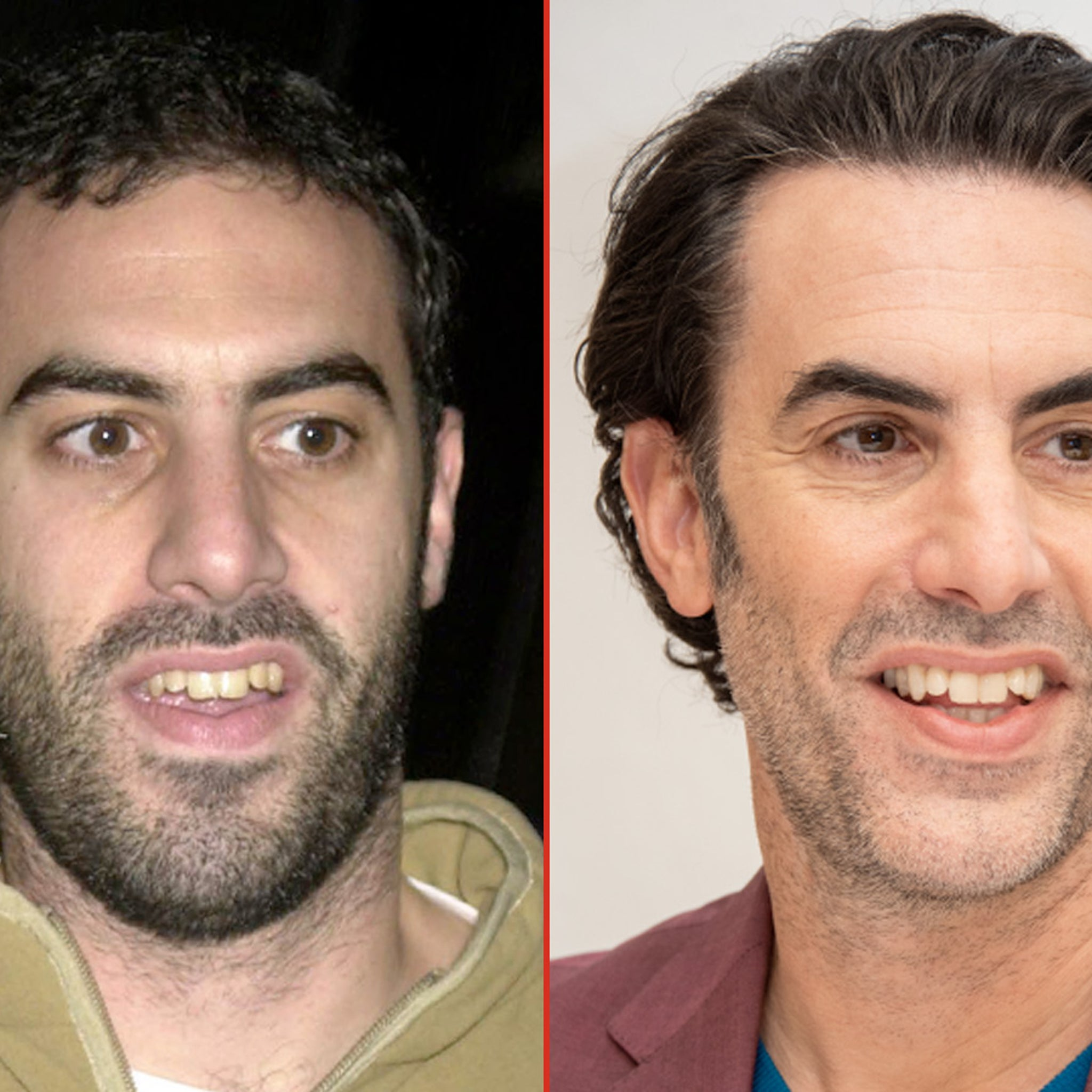 Sacha Baron Cohen -- Good Genes or Good Docs?!