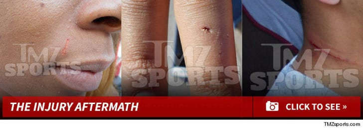 Brittney Griner & Glory Johnson -- The Aftermath Injuries