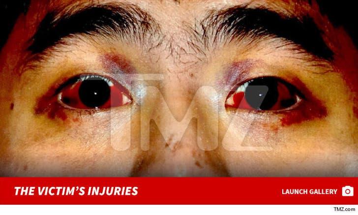 Michael Vitar -- The Victim's Injuries