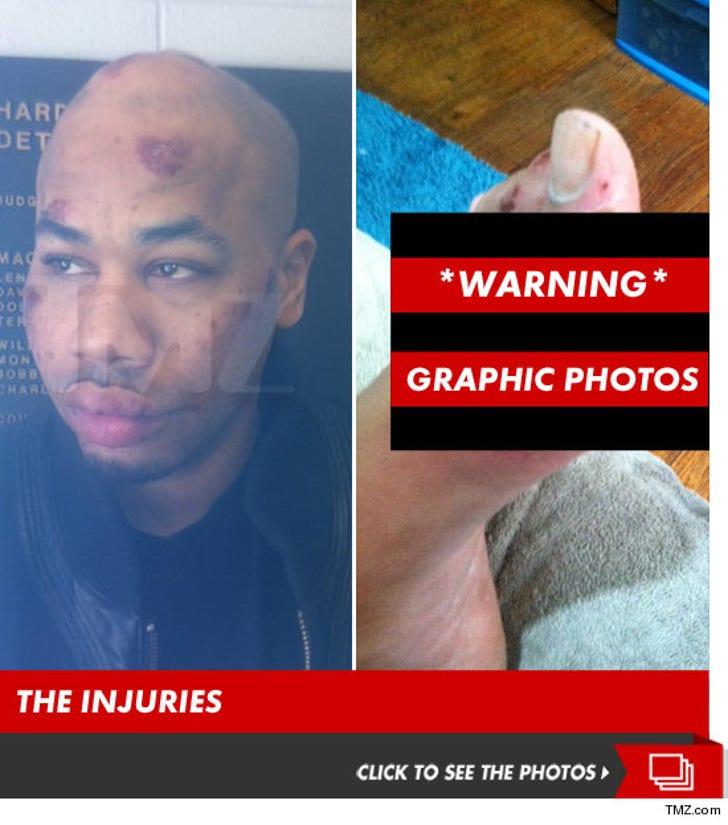 R. Prophet's Injuries -- The Graphic Photos