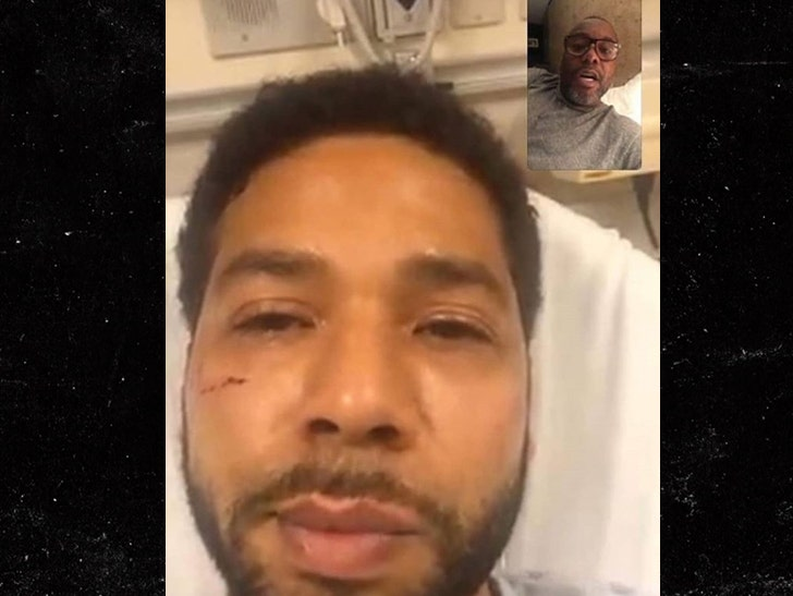 Empire' Star Jussie Smollett Tells Cops His Attackers Touted MAGA
