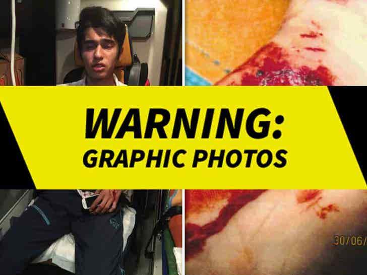 A$AP Rocky -- Alleged Victim Injury Photos