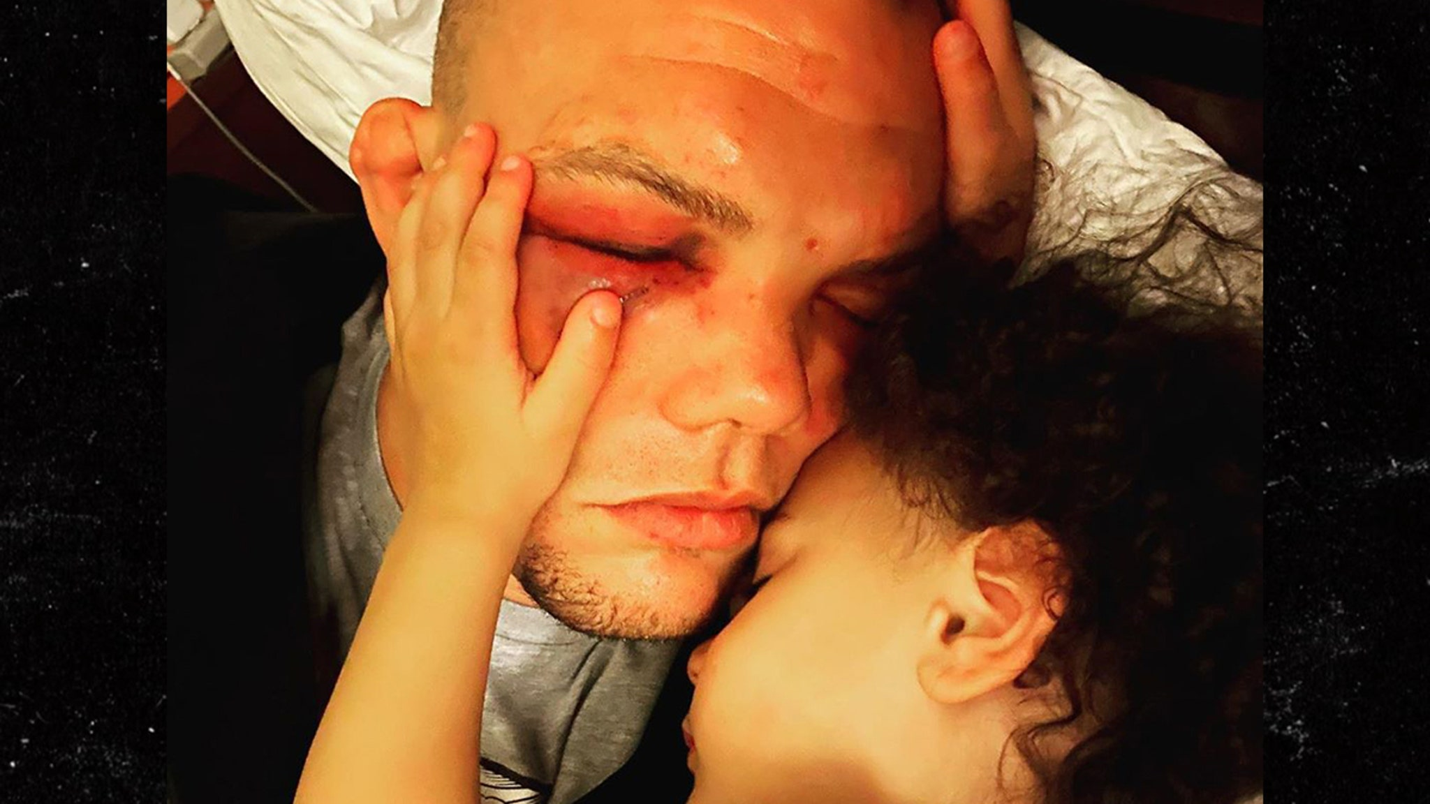 UFC's Anthony Smith Not Worried About Fight Criticism, Posts Injury Photo