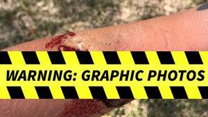 Ezekiel Elliott Dog Attack Case, Gruesome Photos Show Alleged Victim's Injuries