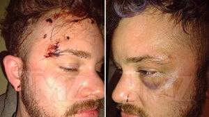 Widow Von'Du's Alleged Victim's Injury Photos, Cuts & So Many Stitches