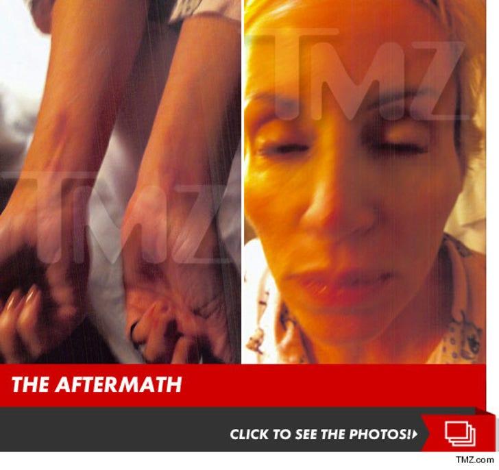 Camille Grammer's Alleged Injuries