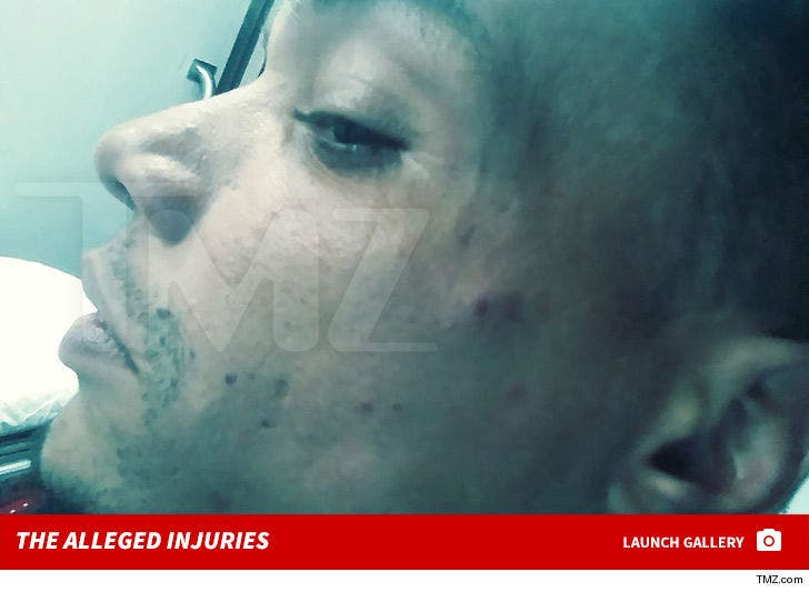 Donnell Rawlings Alleged Injuries Victim