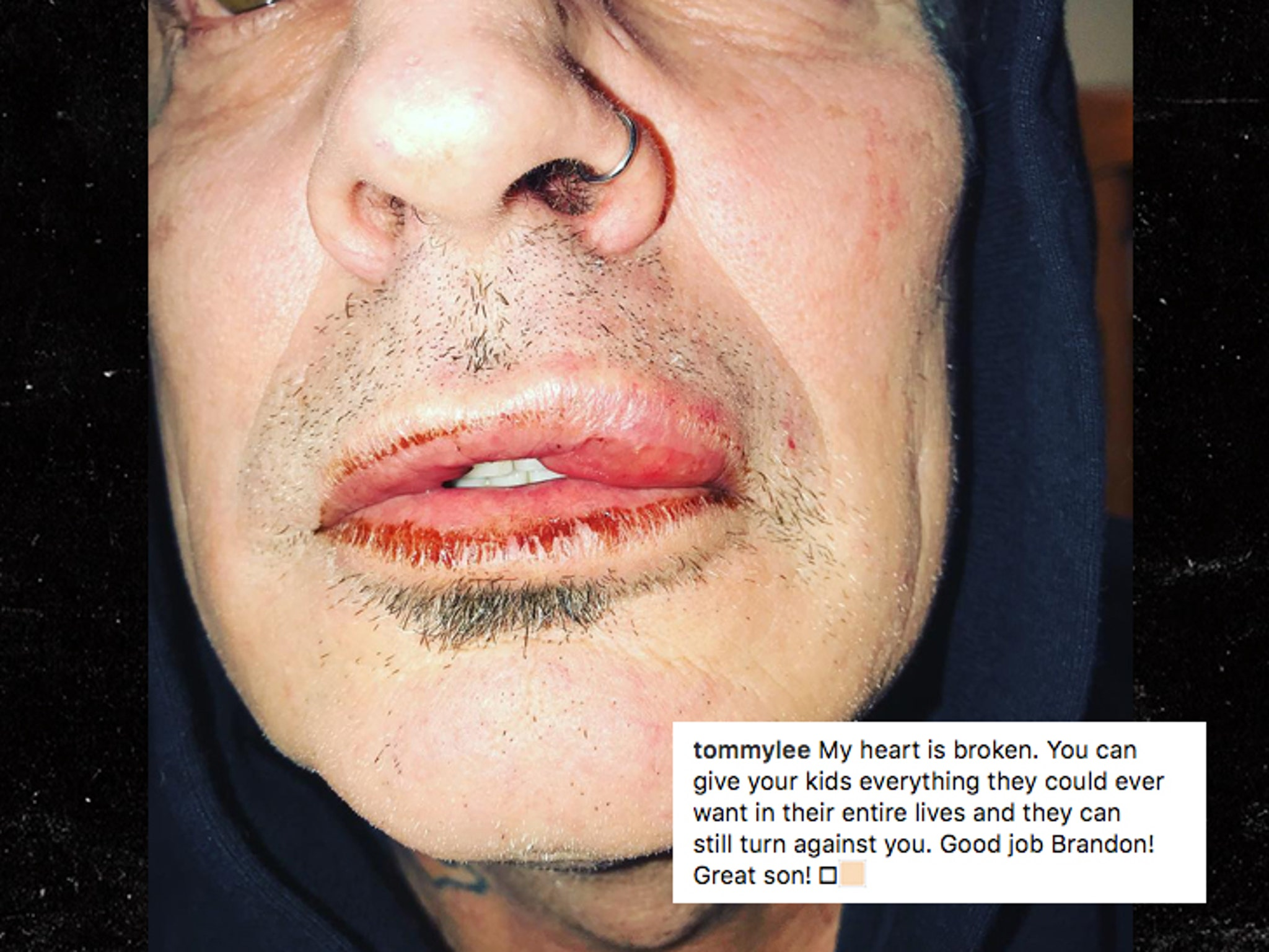 2fc47261f55a Tommy Lee's Son, Brandon, Says Dad Was Drunk, Punched Him in Self-Defense  (UPDATE)