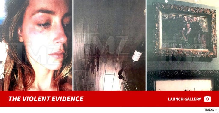 Amber Heard -- The Alleged Injuries