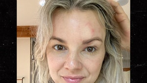 'Bachelorette' Ali Fedotowsky Reveals She Has Shingles at 36 Years Old