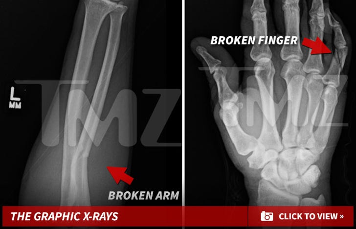 Mayweather's Victim -- The Gruesome X-Rays