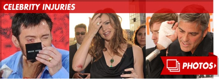 Celebrity Injuries